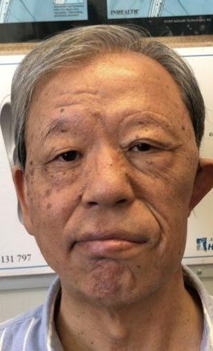 Facial Palsy Eyelid Surgery